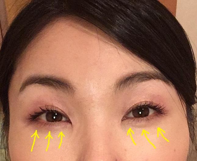 眼輪筋ストレッチ3