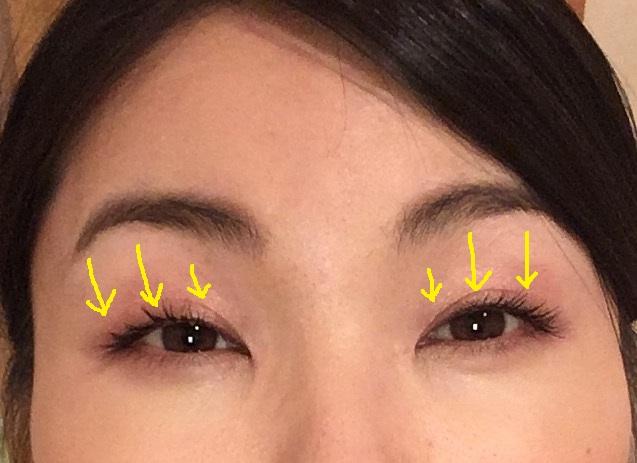 眼輪筋ストレッチ4